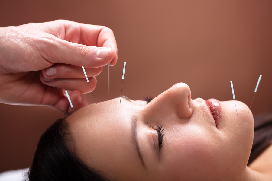 Cranial facial needling physiotherapist in Highett